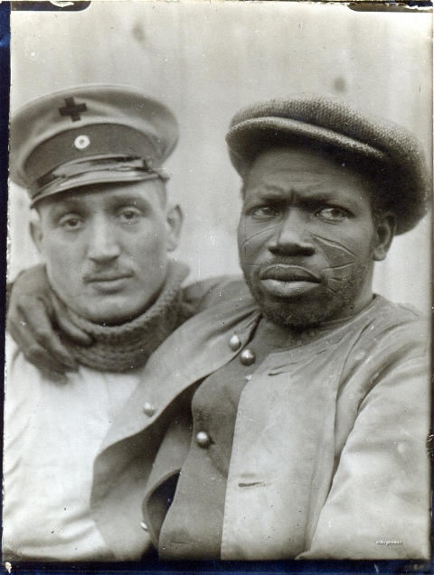 A wounded Senegalese prisoner of war is carried to a bandaging station, November 1914